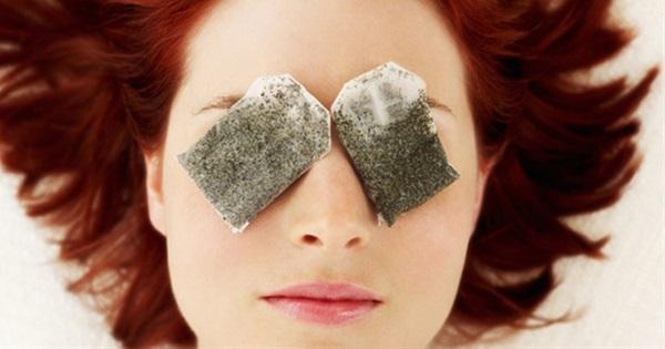 14 Easy Ways To Battle Dark Circles Under Eyes