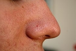 How to get rid of those.... EWWW Gross Blackheads!