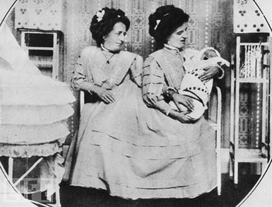 Conjoined twins Josefa & Rosa, with Rosa's son, in 1910.