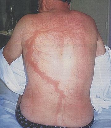 Lichtenberg scar